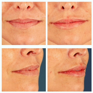 before and after lips « Stacy Cox