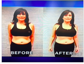 Cindy's Before & After using Adonia Tummy Tone Serum